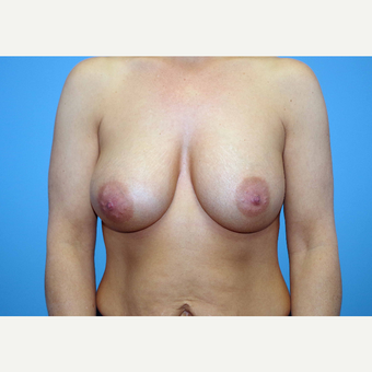 35-44 year old woman treated with Breast Implants after 3440923