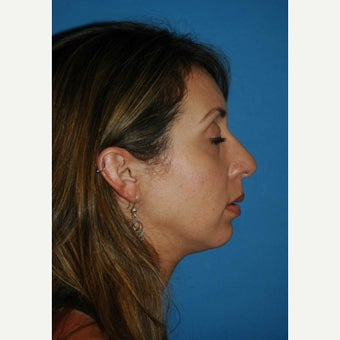 25-34 year old woman treated with Rhinoplasty after 1632419