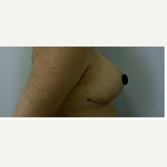 45-54 year old woman treated with Breast Reduction after 3132745