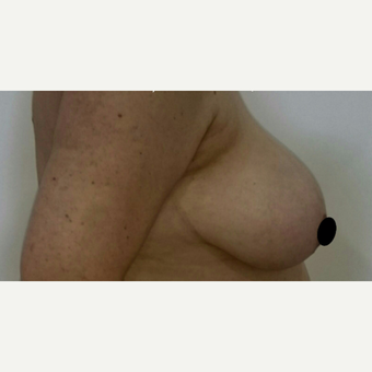45-54 year old woman treated with Breast Reduction before 3132745