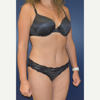 35-44 year old woman treated with Tummy Tuck after 3489822