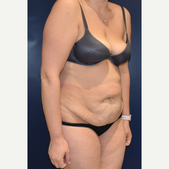 35-44 year old woman treated with Tummy Tuck before 3489822