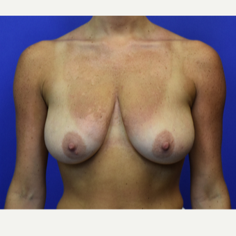 25-34 year old woman treated with Breast Lift before 3331162