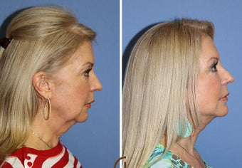 Neck lift  after 1344091