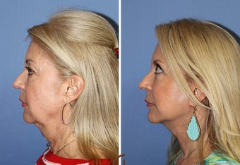 Neck lift  before 1344091