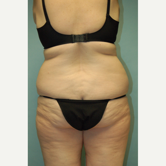 "58 year old woman, 5'6"", 188 lbs. four months after lipoabdominoplasty before 3771654"