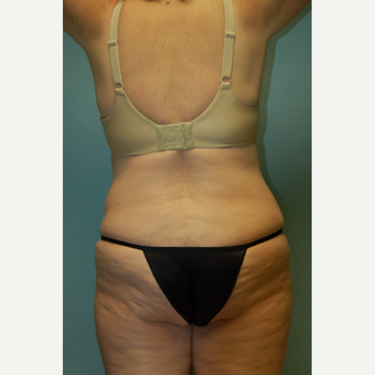 "58 year old woman, 5'6"", 188 lbs. four months after lipoabdominoplasty after 3771654"