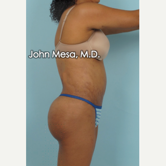 45-54 year old woman treated with Brazilian Butt Lift after 3777657