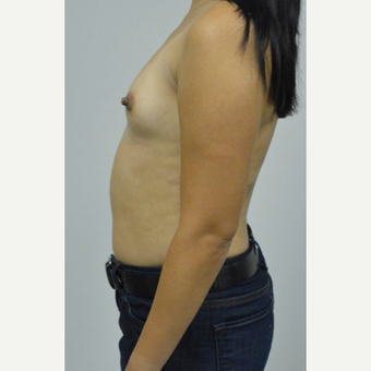 35-44 year old woman treated with Breast Augmentation before 3005054