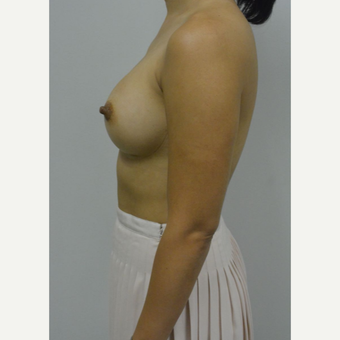 35-44 year old woman treated with Breast Augmentation after 3005054