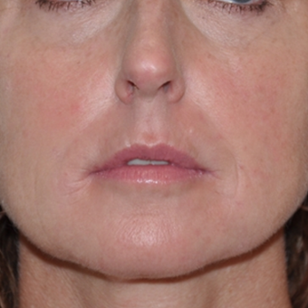 Non-surgical rejuvenation on 44 year old patient using Voluma, Juvederm XC, and Prevelle Silk after 2219128