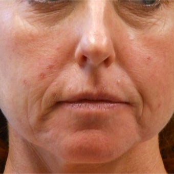Non-surgical rejuvenation on 44 year old patient using Voluma, Juvederm XC, and Prevelle Silk before 2219128