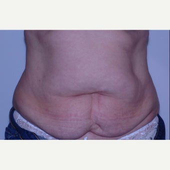 Mother treated with Tummy Tuck (abdominoplasty) before 2245928