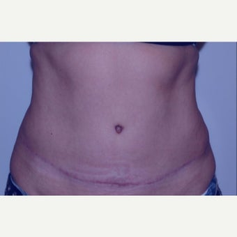 Mother treated with Tummy Tuck (abdominoplasty) after 2245928