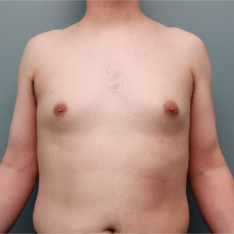 This 20 something year old man was treated with Liposuction to remove gynecomastia before 3467029