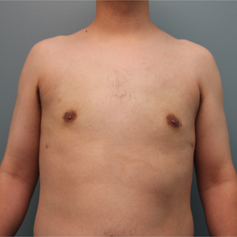 This 20 something year old man was treated with Liposuction to remove gynecomastia after 3467029