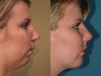 Chin Augmentation after 409094