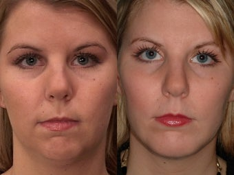 Chin Augmentation before 409094