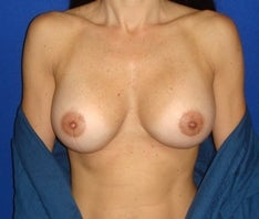 45 year old for breast enhancement after 846913