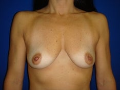 45 year old for breast enhancement before 846913