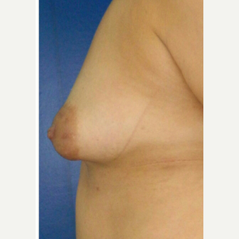 25-34 year old woman treated with Breast Augmentation before 3132691