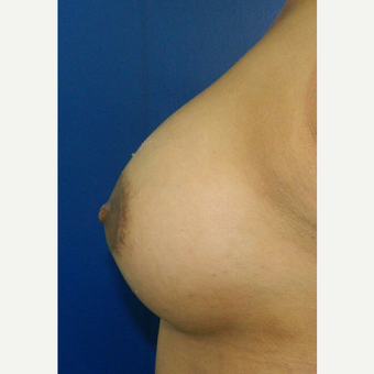 25-34 year old woman treated with Breast Augmentation after 3132691