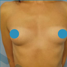 35-44 year old woman treated with Breast Augmentation before 3374824
