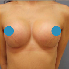 35-44 year old woman treated with Breast Augmentation after 3374824