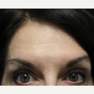 55-64 year old woman treated with Botox after 3132097