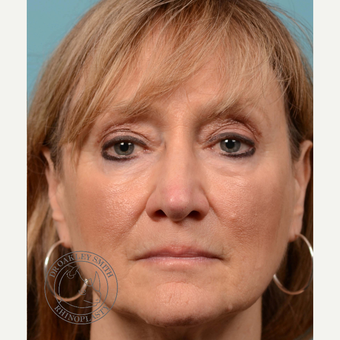 35-44 year old woman treated with septoplasty/revision rhinoplasty after 3313213