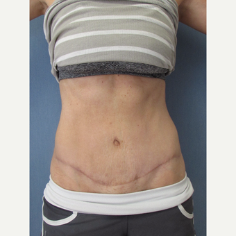 36 year old patient - Mini Abdominoplasty after 3011489