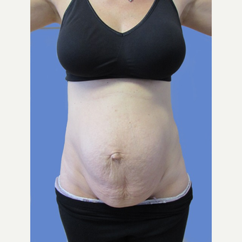 36 year old patient - Mini Abdominoplasty before 3011489