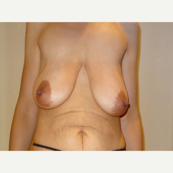25-34 year old woman treated with Breast Lift before 3203072