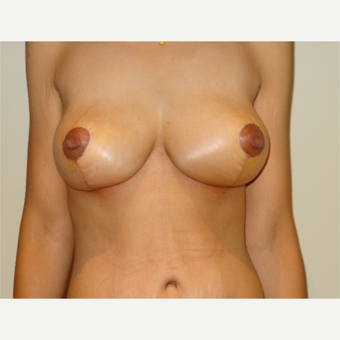25-34 year old woman treated with Breast Lift after 3203072