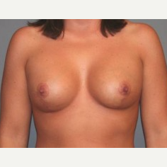 25-34 year old woman treated with Breast Lift after 3339179