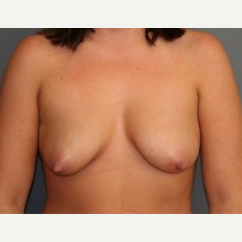 25-34 year old woman treated with Breast Lift before 3339179