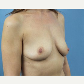 35-44 year old woman treated with Breast Lift with Implants before 3162215