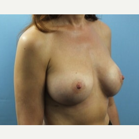 35-44 year old woman treated with Breast Lift with Implants after 3162215
