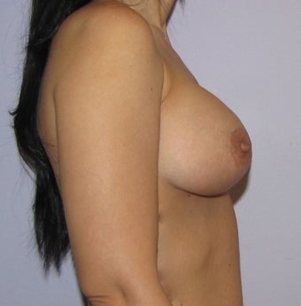 34 year old woman underwent Breast Augmentation with 360 cc high profile saline implants after 3452571