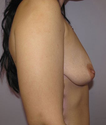 34 year old woman underwent Breast Augmentation with 360 cc high profile saline implants before 3452571
