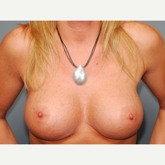36 y/o Inframammary Sub Muscular Breast Augmentation after 3066158