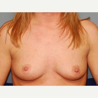 36 y/o Inframammary Sub Muscular Breast Augmentation before 3066158