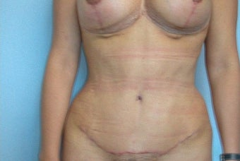 35-44 year old woman treated with Tummy Tuck after 2622347