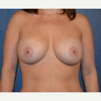 35-44 year old woman treated with Breast Augmentation after 1641693