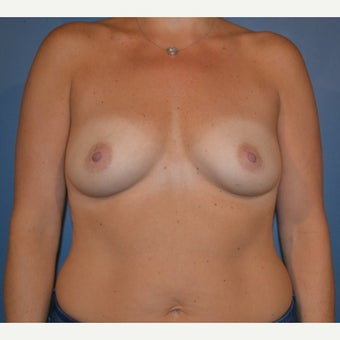 35-44 year old woman treated with Breast Augmentation before 1641693