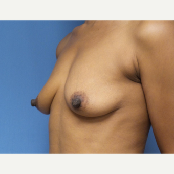 35-44 year old woman treated with Breast Augmentation before 3038368