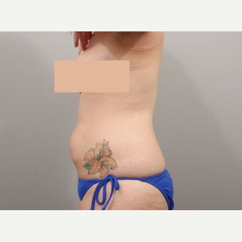Laser Liposuction before 1857260
