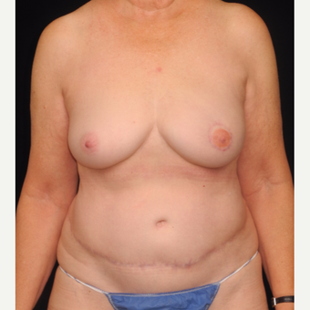 72 y/o - Immediate Left DIEP Breast Flap Reconstruction after 3842799