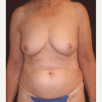 72 y/o - Immediate Left DIEP Breast Flap Reconstruction before 3842799