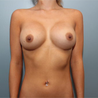 24 year old had Breast Augmentation using 415cc silicone implants after 3544436